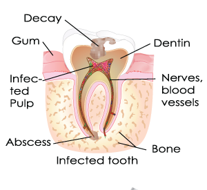 Root Canal Largo FL