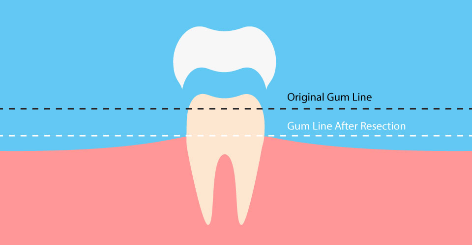 Periodontal Plastic Surgery Largo FL